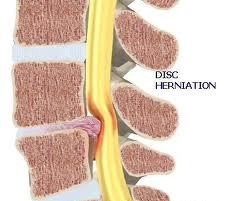 Disc herniation causes acute low back pain